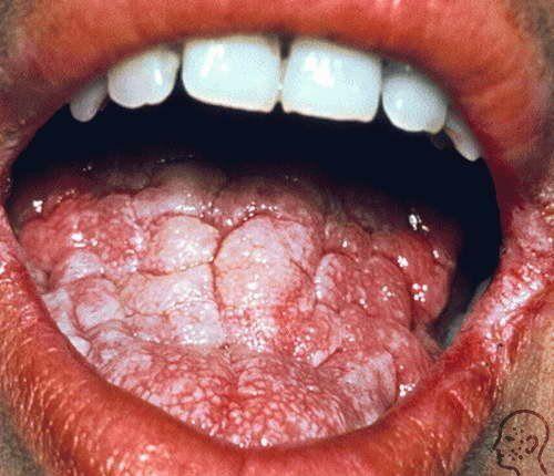 Дрожжевой грибок у женщин, мужчин и детей: симптомы и лечение