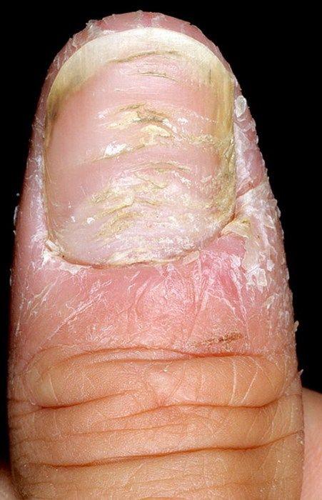 Экзема под ногтями