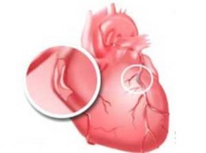 Атеросклеротические изменения аорты