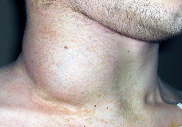 Операция лимфома
