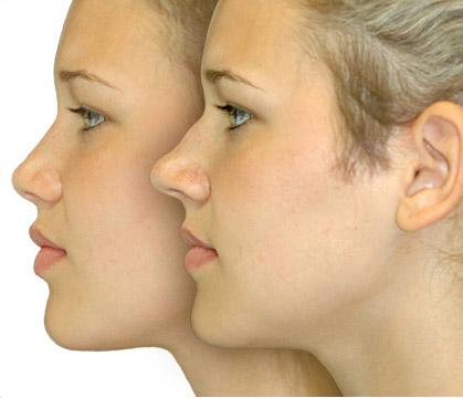 ринопластика носа фото до и после