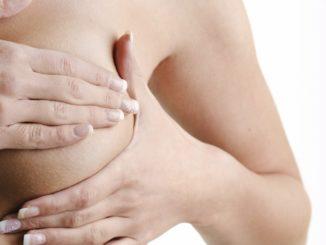 Рак молочной железы у женщин