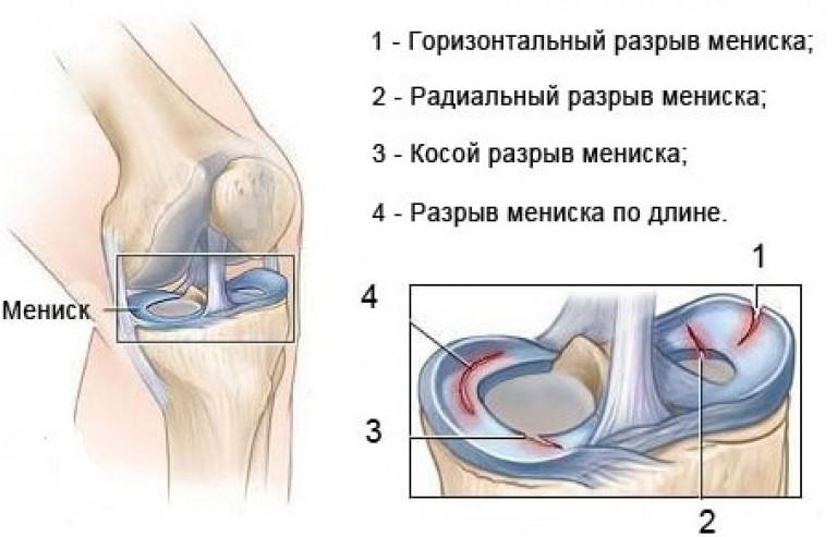 Виды повреждений менисков