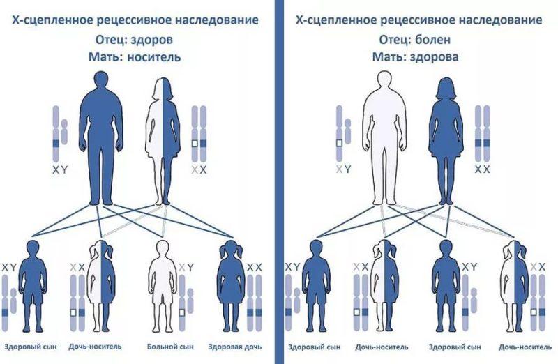 Гемофилия - генетическое заболевание