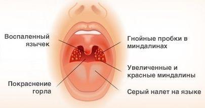 ангина симптомы и лечение у взрослых