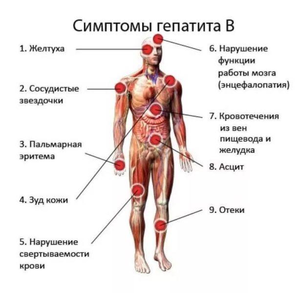 priznaki-gepatita-b