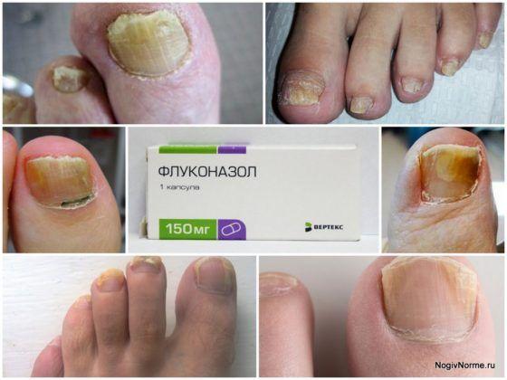 Флуконазол лечение грибка ногтей