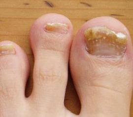 Запущенный грибок на ногтях ног лечение