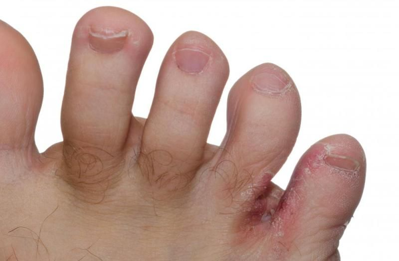 Болячки между пальцами ног фото