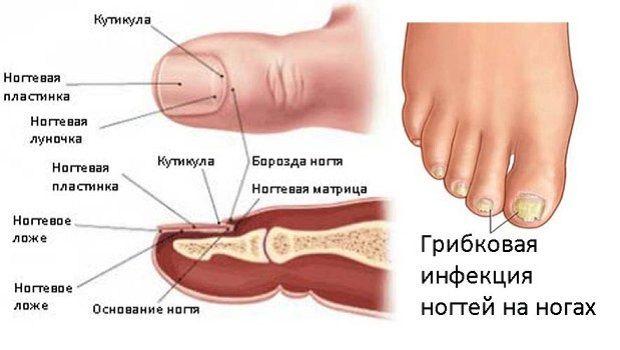 Как убрать грибок на ногтях