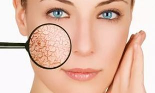 Шелушение кожи при беременности