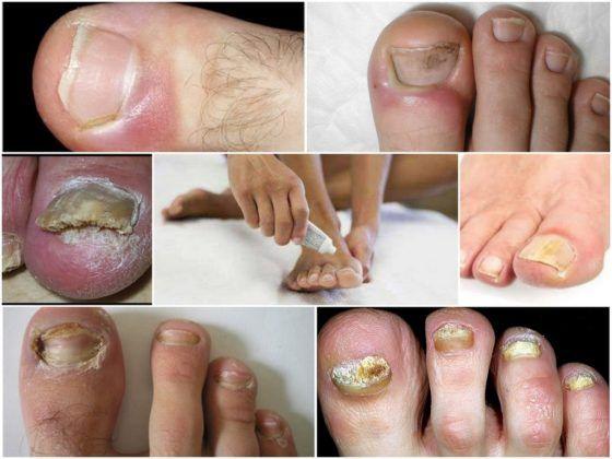 Кандидоз ногтей лечение