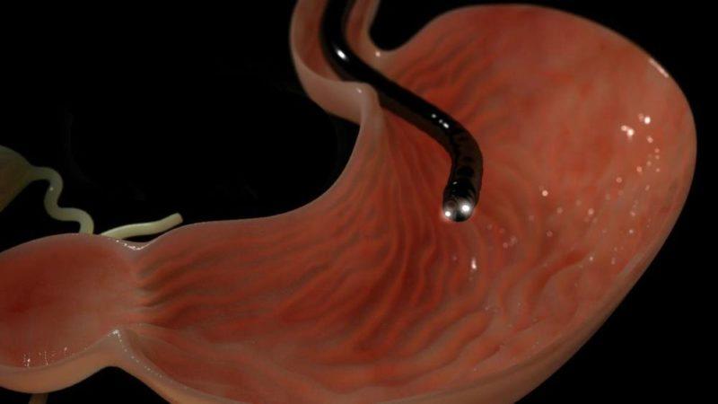 Эзофагогастродуоденофиброскопия