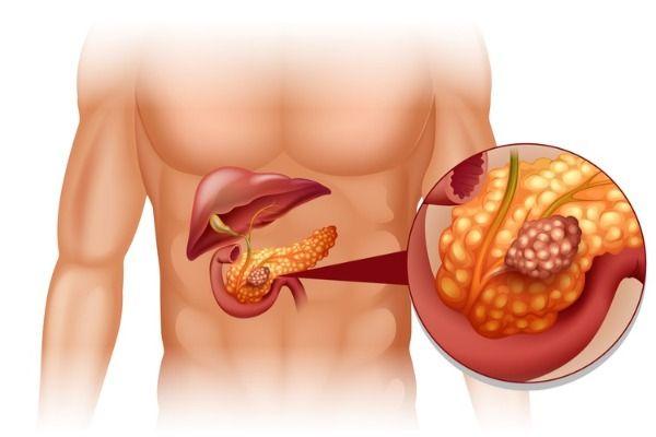 Прогноз при раке поджелудочной железы