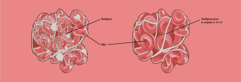 Фибриноген в крови норма у мужчин