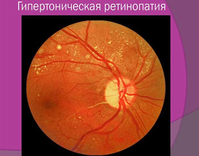 Фоновая ретинопатия у ребенка