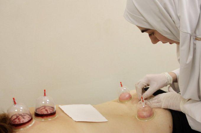 Хиджаба испускание крови отзывы