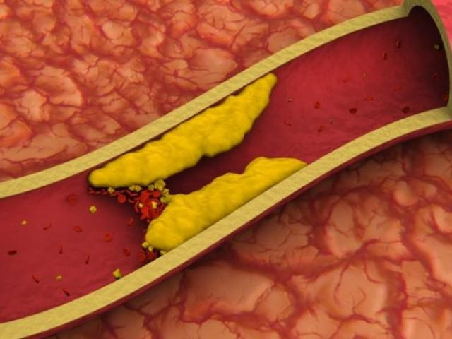 Норма холестерина по возрасту у мужчин и женщин: таблица