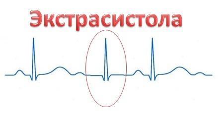 Чем лечить экстрасистолы сердца