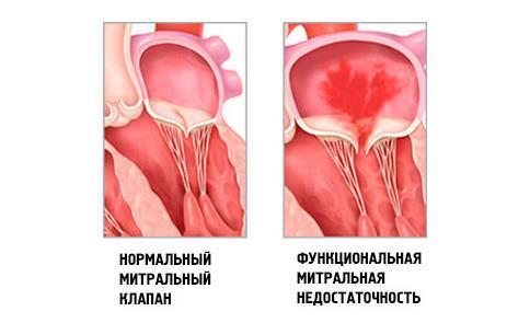 Фиброз клапанов сердца лечение