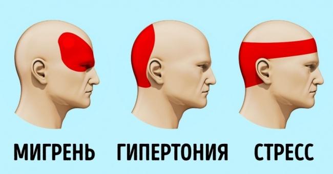 Чем можно убрать головную боль