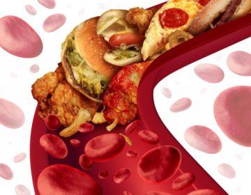 Холестерин и давление взаимосвязь