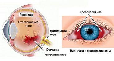 Чем опасно кровоизлияние в глаз