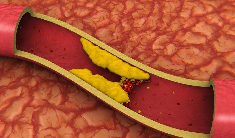 Холестерин в крови выше нормы