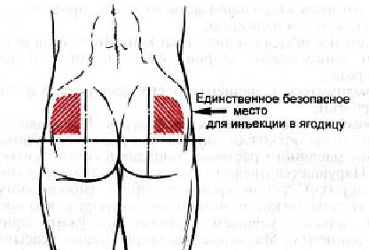 Уход при геморрагическом инсульте