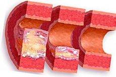 Утолщение стенки аорты сердца