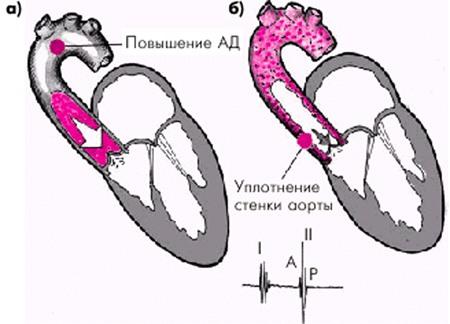 Утолщение стенок аорты причины