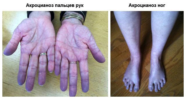 Акроцианоз при каких заболеваниях