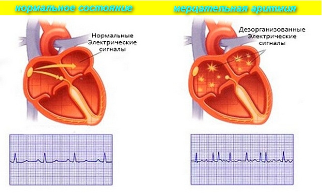 Что выпить при аритмии сердца