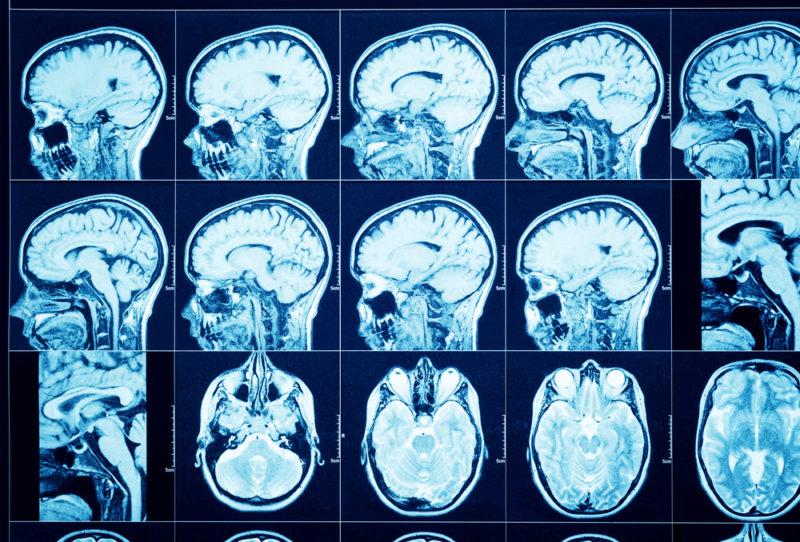 Что дает компьютерная томография
