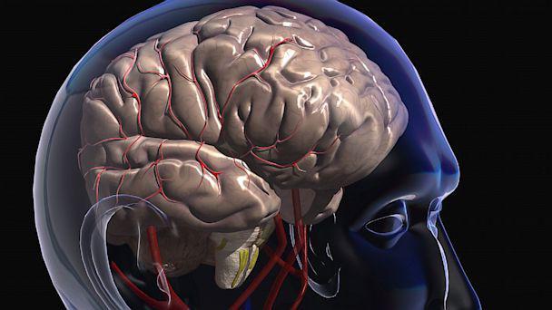 Что колят при сотрясении мозга