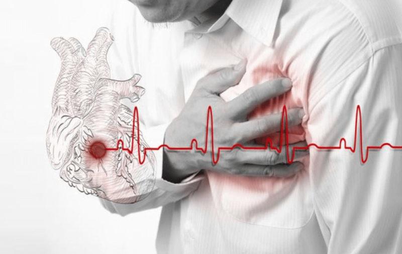 Экг показывает инфаркт а узи нет