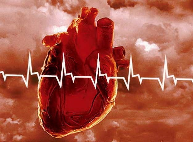 Каковы симптомы инфаркта миокарда