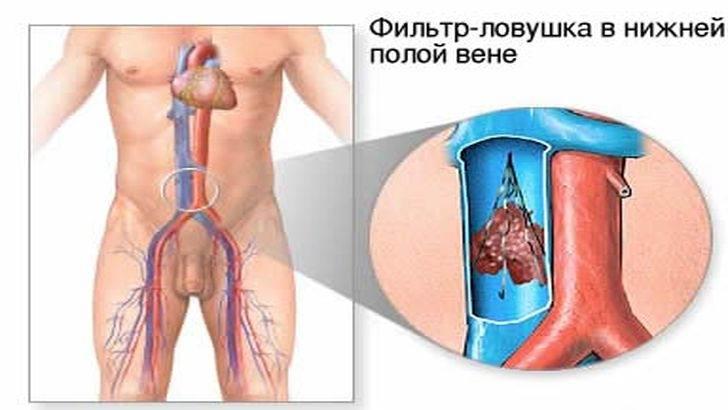 Что делает ловушка для тромбов