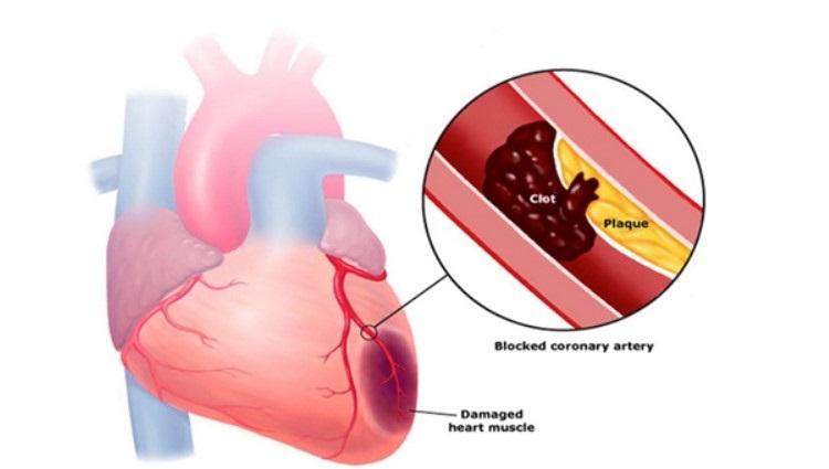 Что такое инфаркт фото сердца