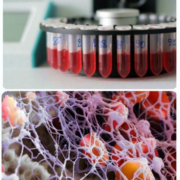 Аббревиатура тромбоцитов в анализе