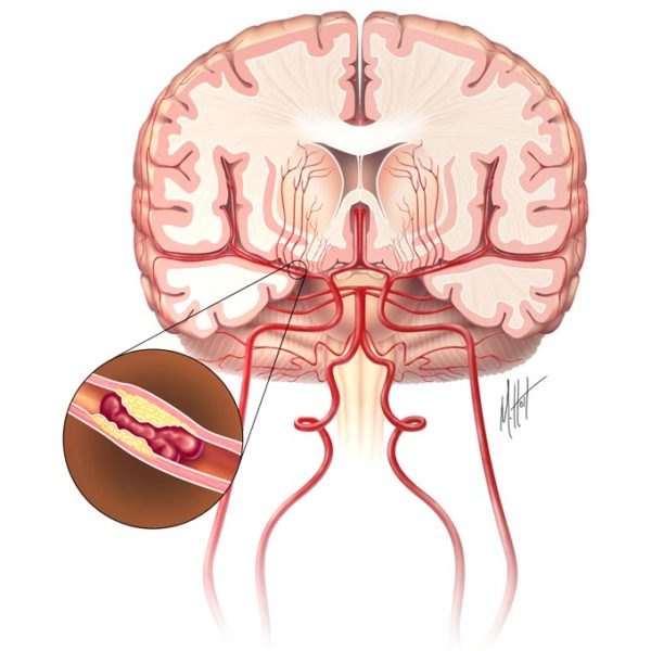 Осложнения гипертонической болезни, последствия гипертонии