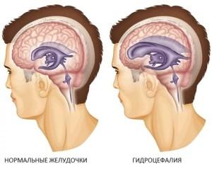 Шунт в голове при гидроцефалии
